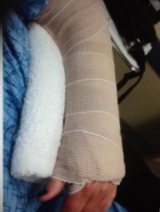 Splint in ER